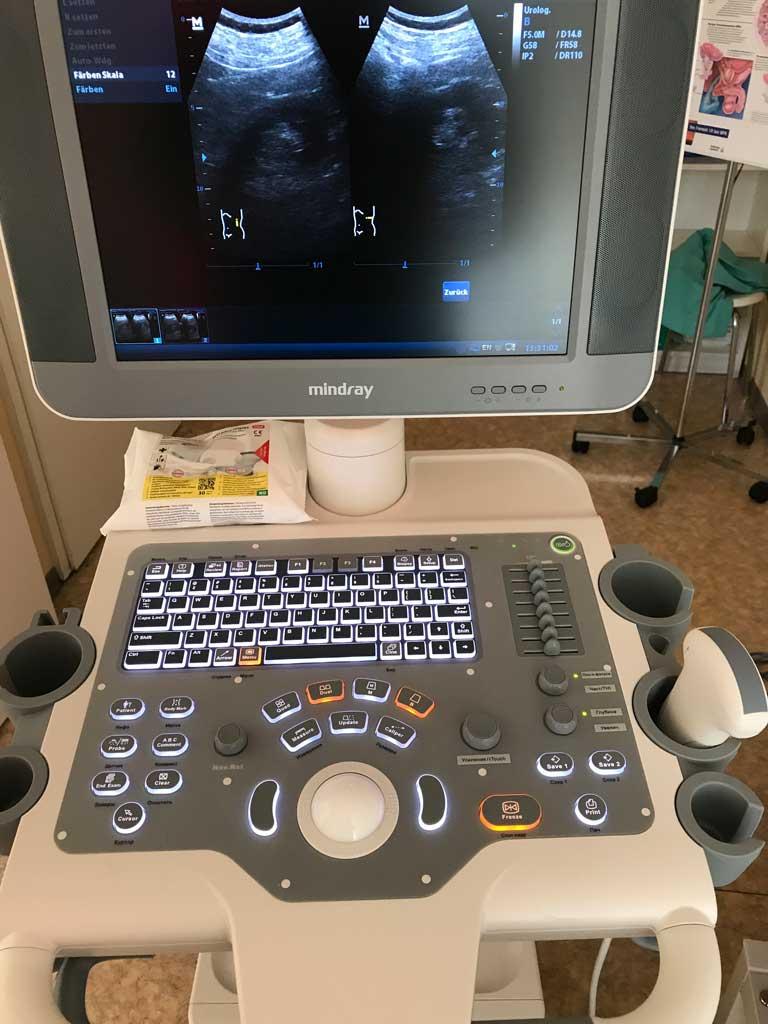 Urologie-Ivanov-Ultraschallgerät